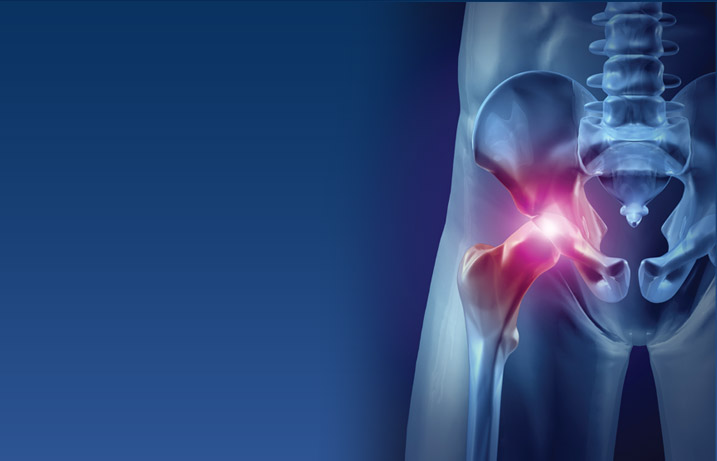 Hip joint replacement surgery