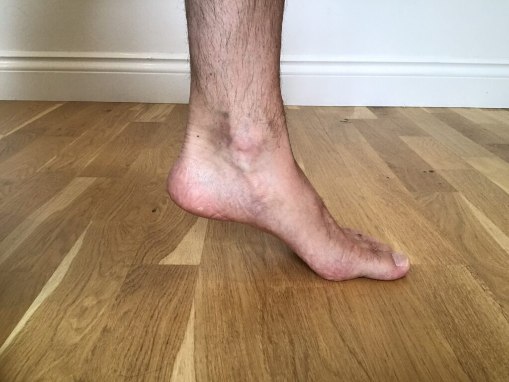 How to assess the function of your plantar flexors